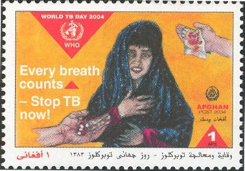 World TB Day 2004